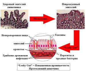 Чем грозит повышенная проницаемость кишечника